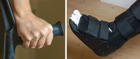 Ulla-fod-brækket